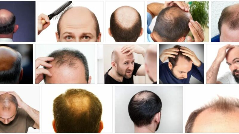 Meaning of Baldness