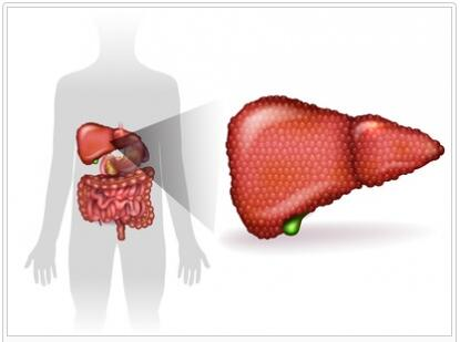 Alcoholic Liver Disease Explained
